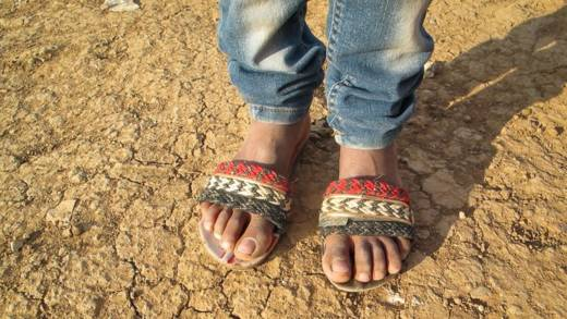 The feet of a refugee in Bekaa Valley, Lebanon.