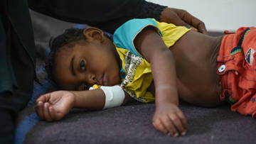 Rafi*, a starving Yemeni child